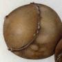 Three galls (Andricus quercustozae)